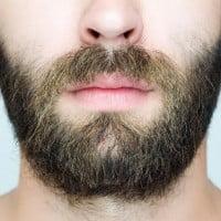 Как проходит процедура пересадки волос на бороду?