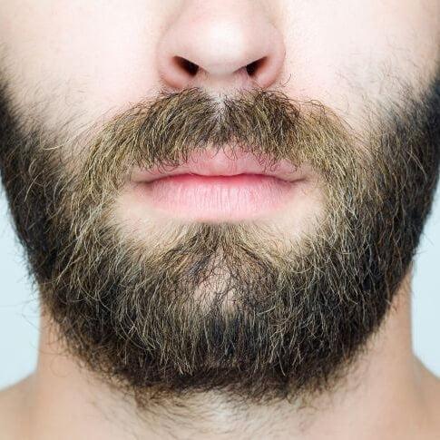 Пересадка волос на бороду