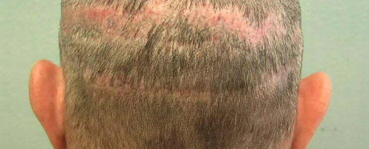 Безоперационная пересадка волос