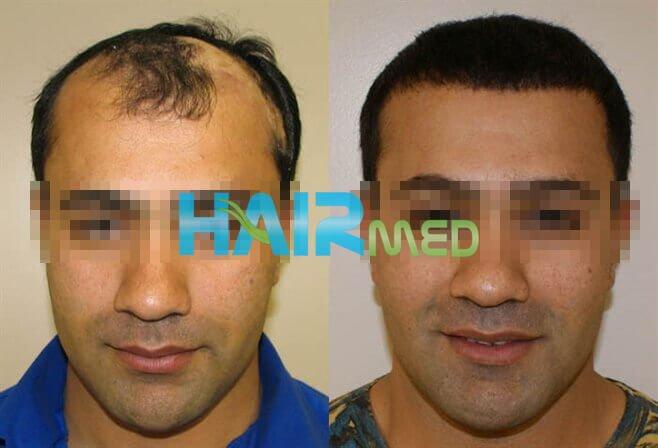 Фотографии до и после пересадки волос